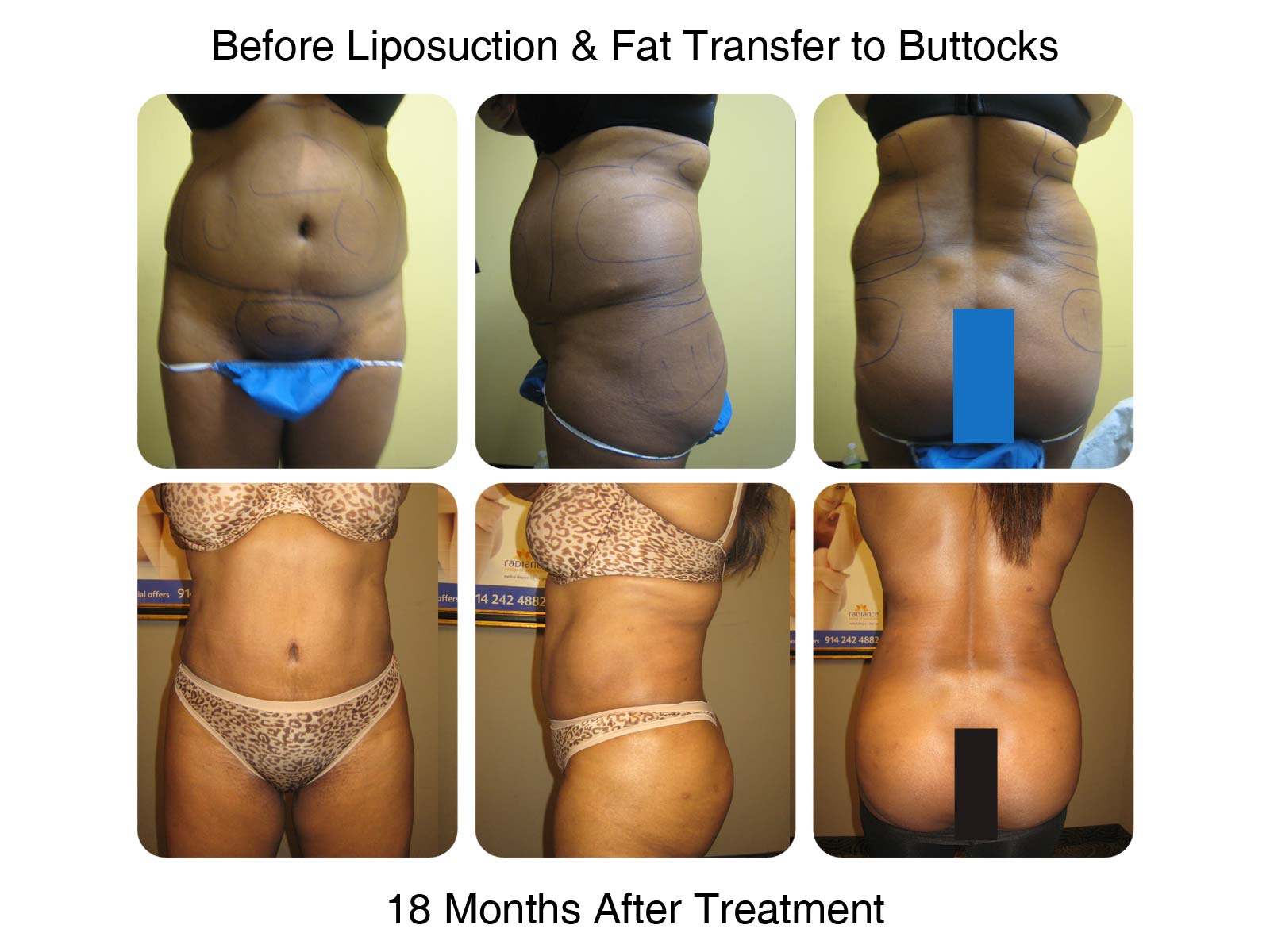 Brazilian Butt Lift Fat Transfer Before and After 1