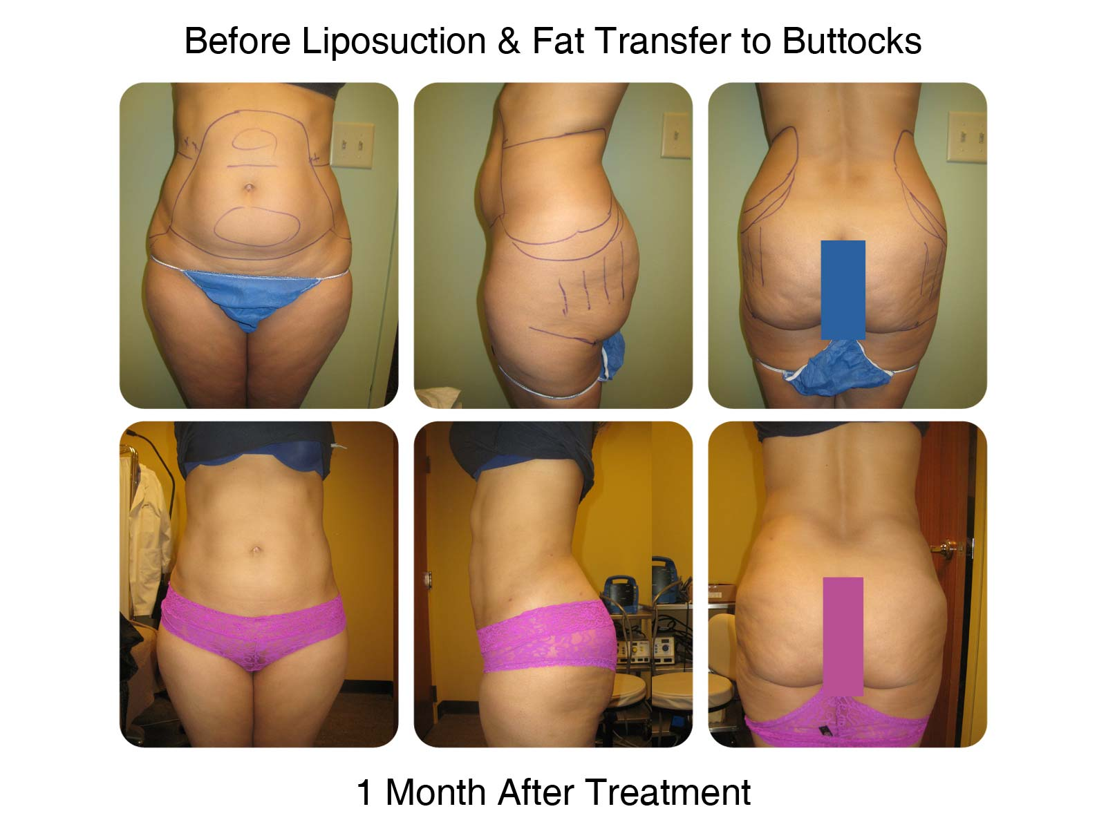 Brazilian Butt Lift Fat Transfer Before and After 2