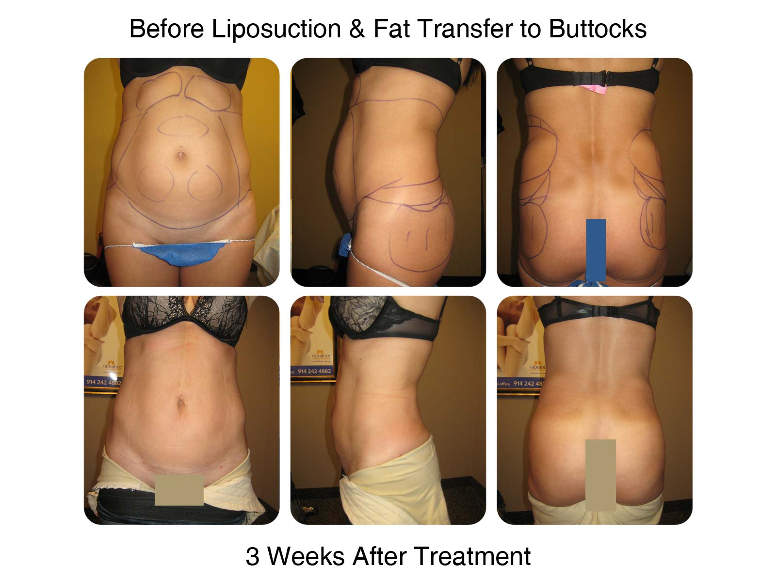 Brazilian Butt Lift Fat Transfer Before and After 3