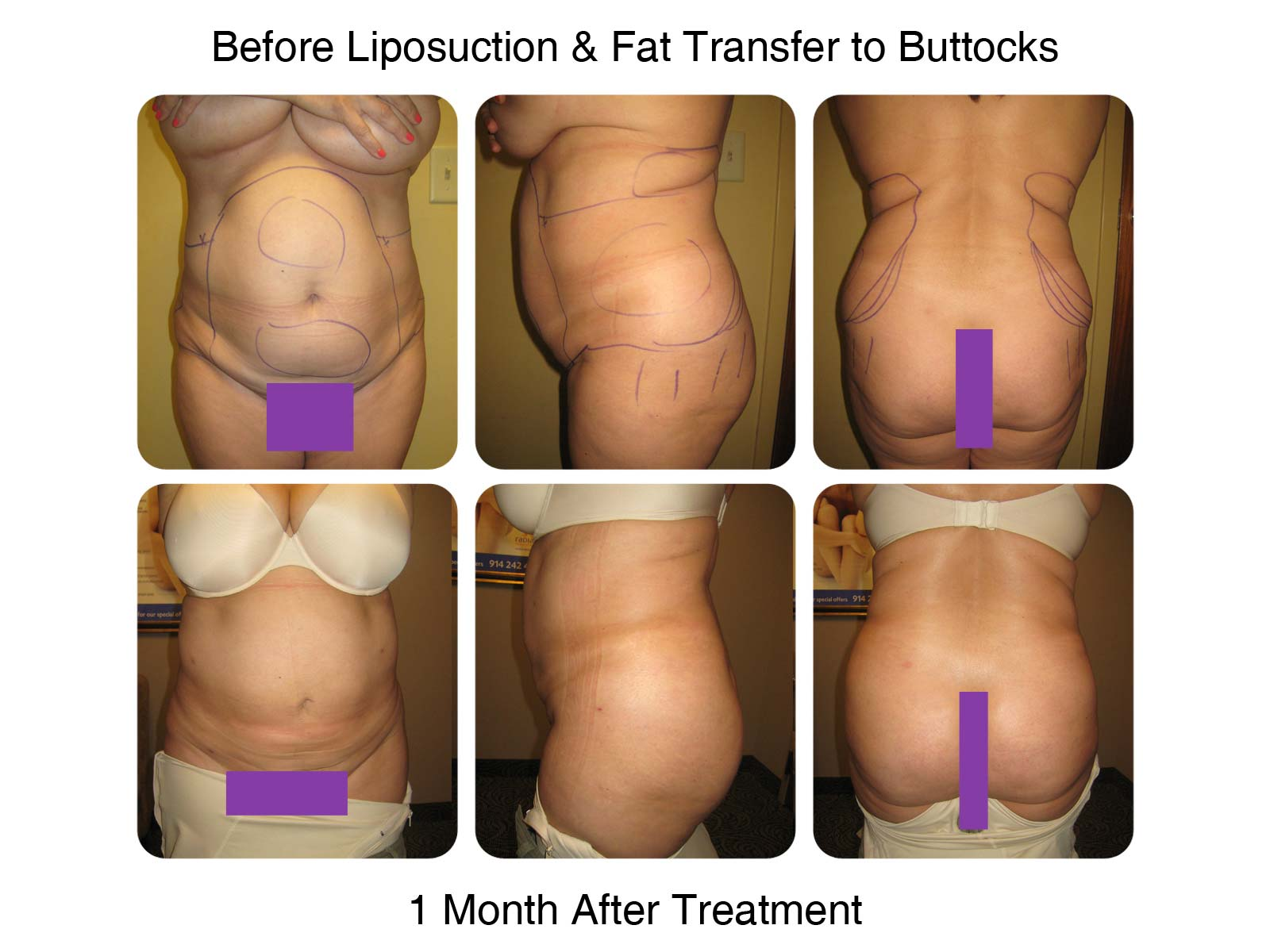 Brazilian Butt Lift Fat Transfer Before and After 4