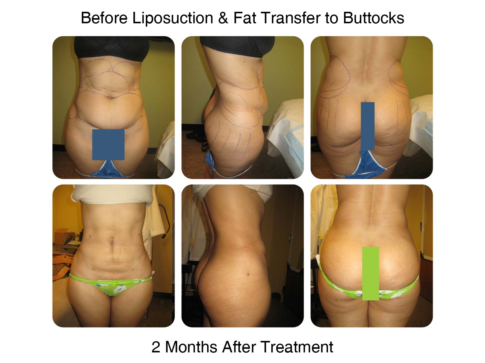 Brazilian Butt Lift Fat Transfer Before and After 5