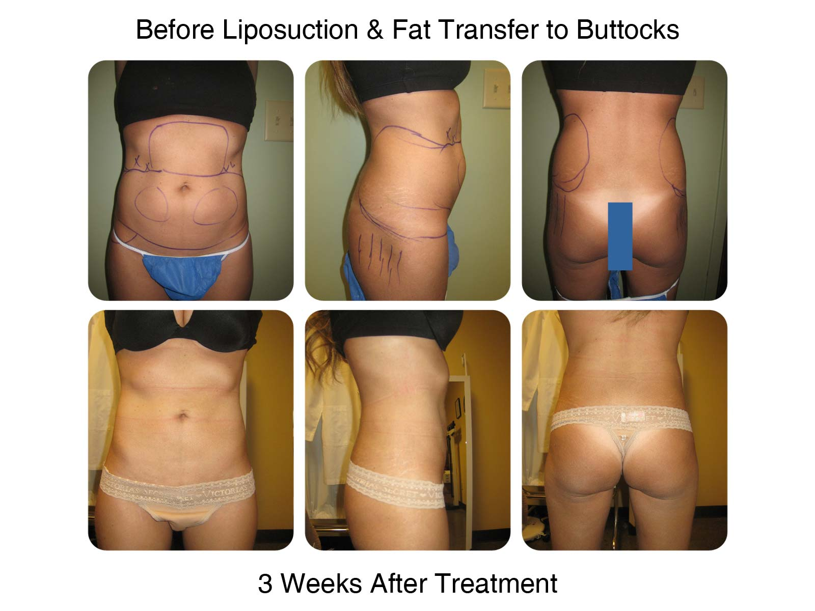 Brazilian Butt Lift Fat Transfer Before and After 6