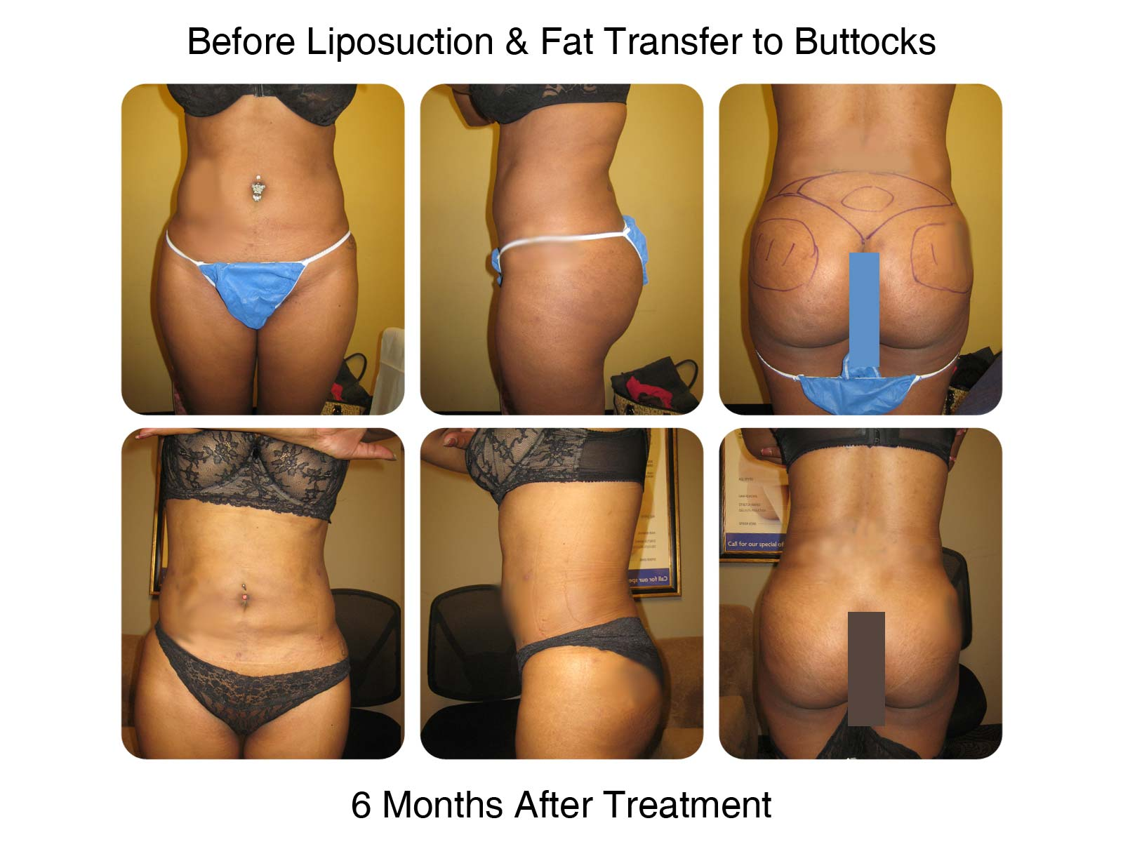 Brazilian Butt Lift Fat Transfer Before and After 7