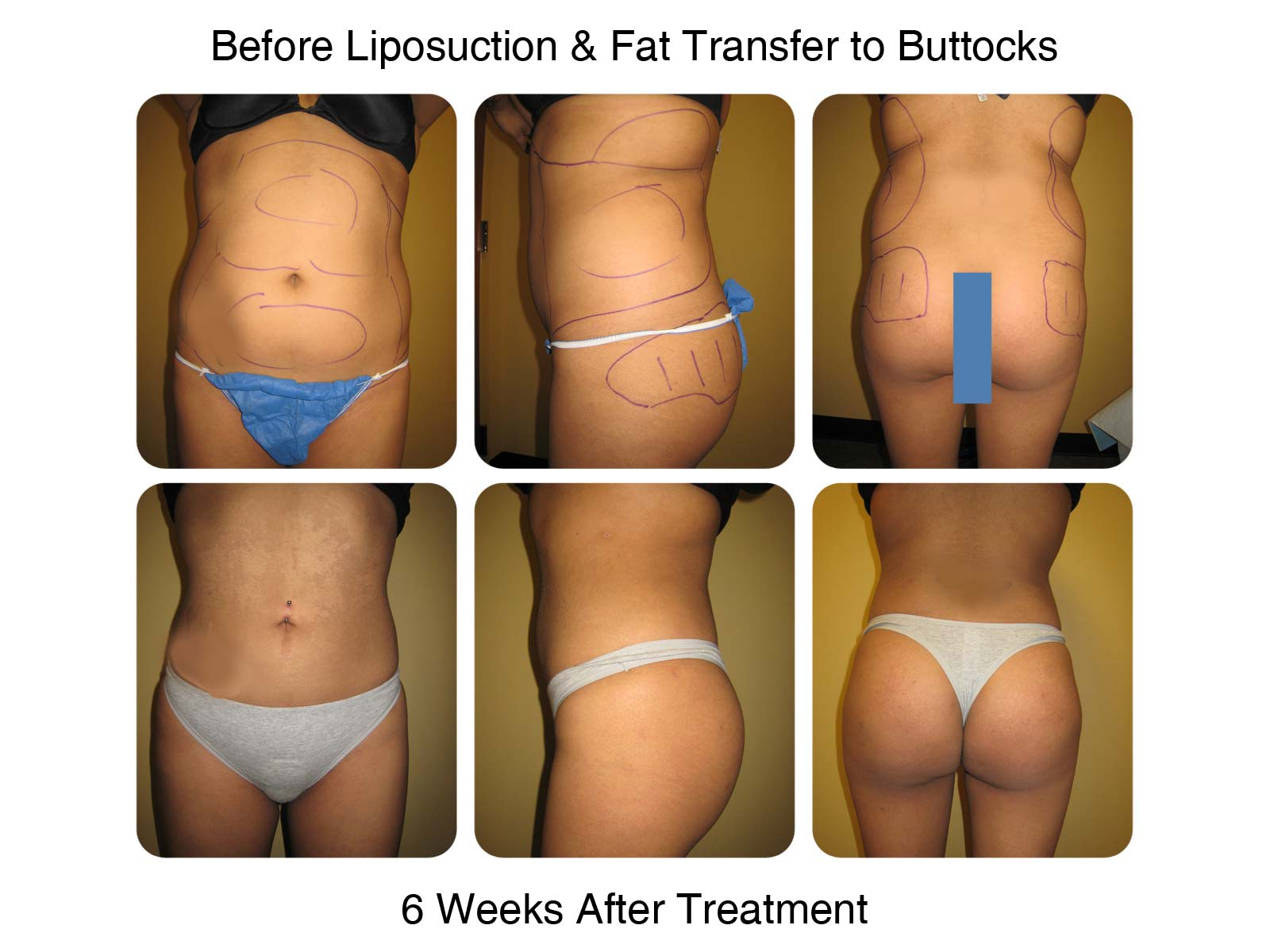 Brazilian Butt Lift Fat Transfer Before and After 8