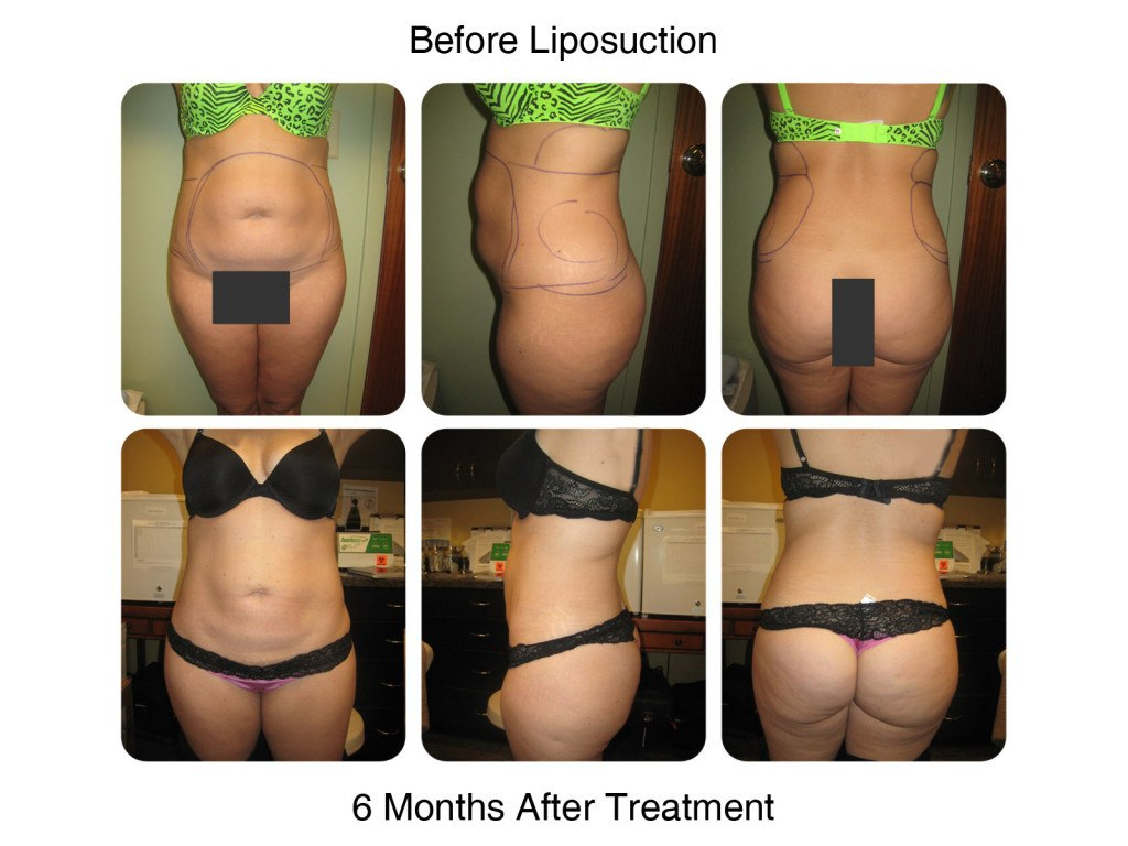 Smart Liposuction Fat Removal Before and After 1