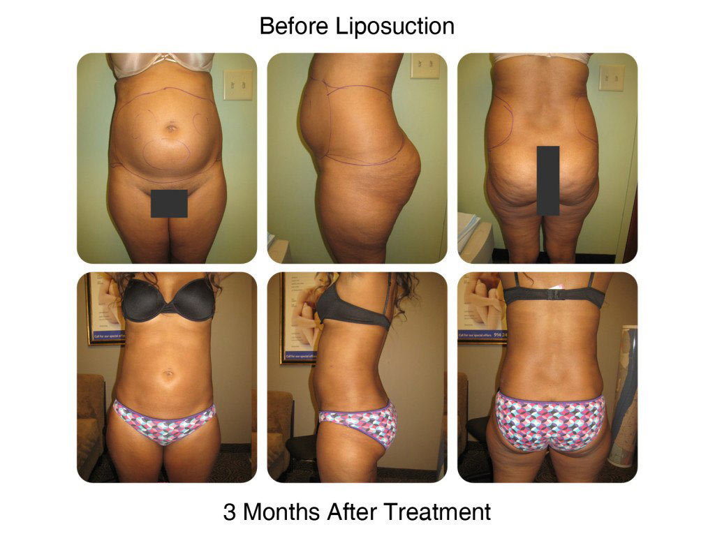 Smart Liposuction Fat Removal Before and After 2