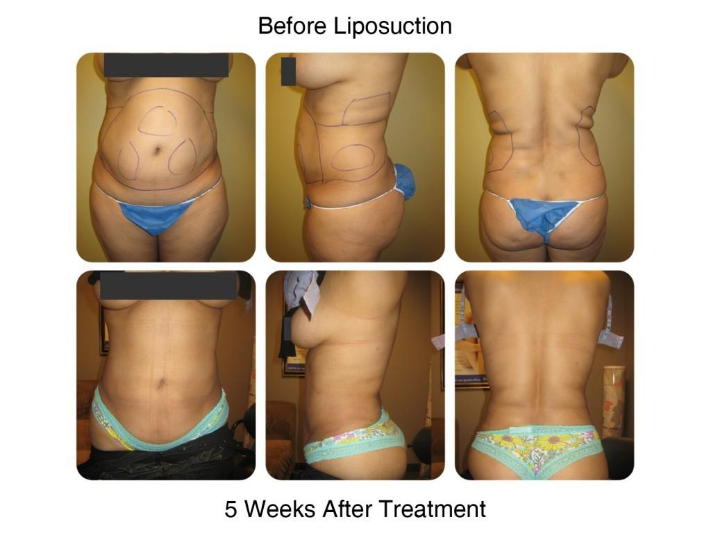 Smart Liposuction Fat Removal Before and After 3