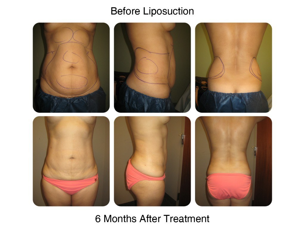 Smart Liposuction Fat Removal Before and After 4