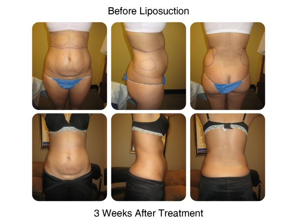 Smart Liposuction Fat Removal Before and After 5