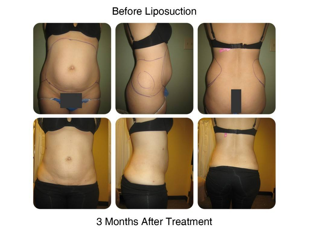 Smart Liposuction Fat Removal Before and After 6