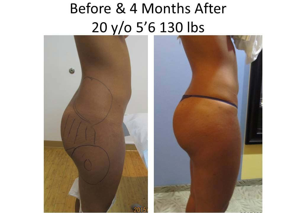 Brazilian Butt Lift Before and After Photo 10