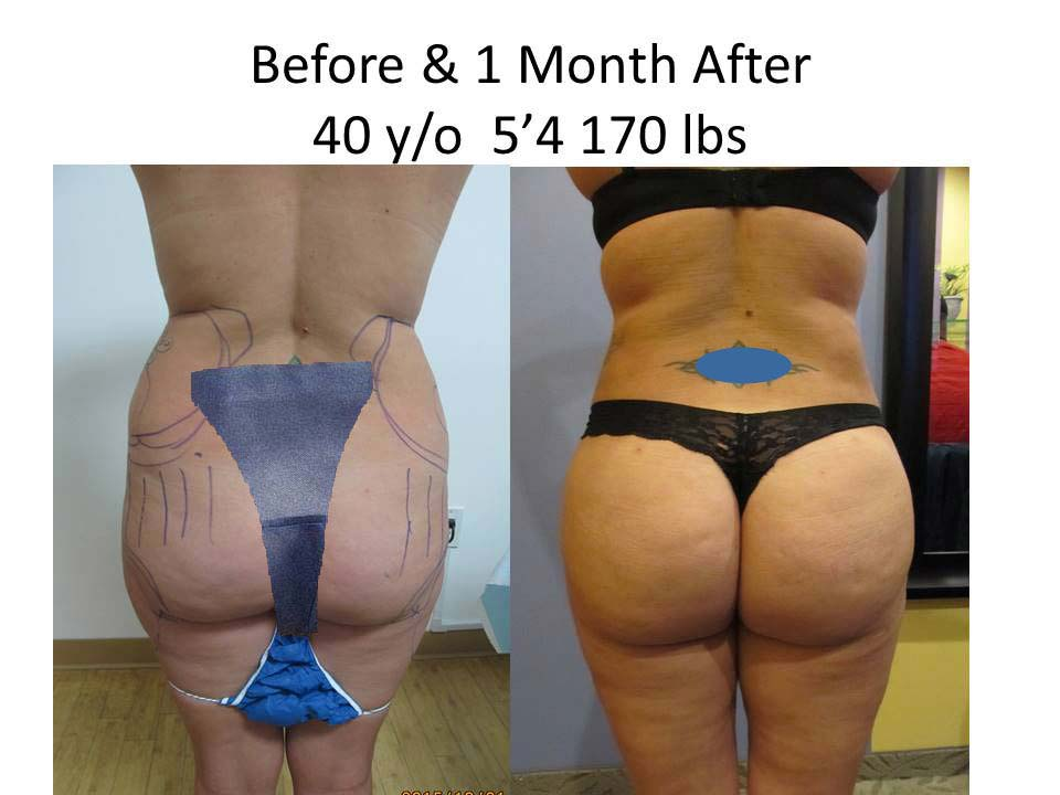 Brazilian Butt Lift Before and After Photo 15