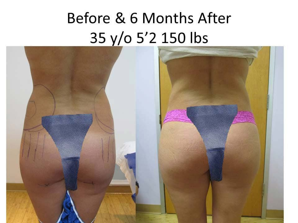 Brazilian Butt Lift Before and After Photo 7