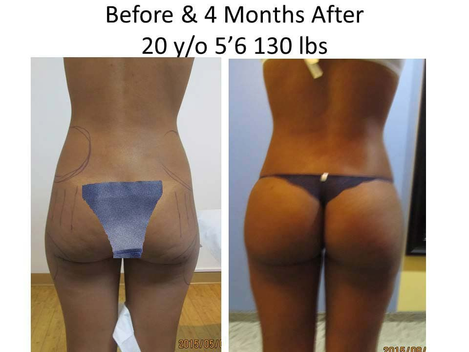 Brazilian Butt Lift Before and After Photo 9