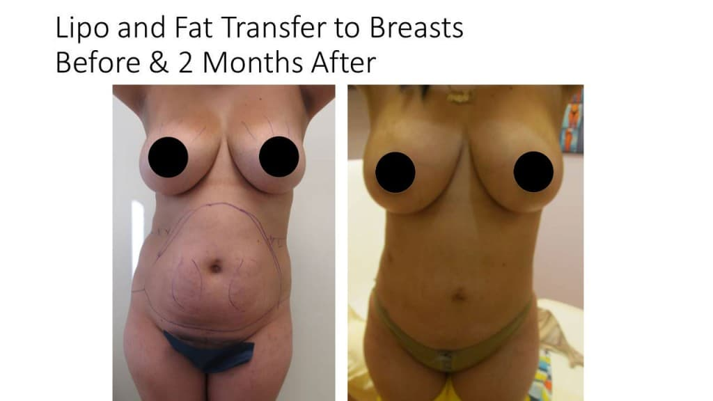 Fat Transfer Breast Augmentation Before and After 1