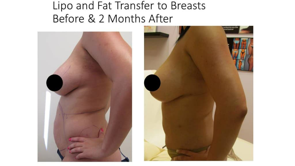 Fat Transfer Breast Augmentation Before and After 2