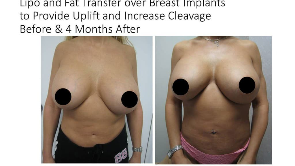 Fat Transfer Breast Augmentation Before and After 3