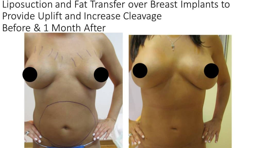Fat Transfer Breast Augmentation Before and After 4