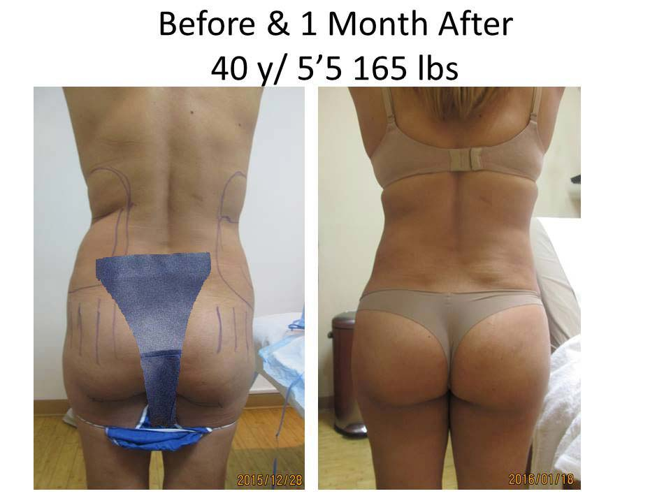 Fat Transfer to Buttock Liposuction Before and After Photo 1