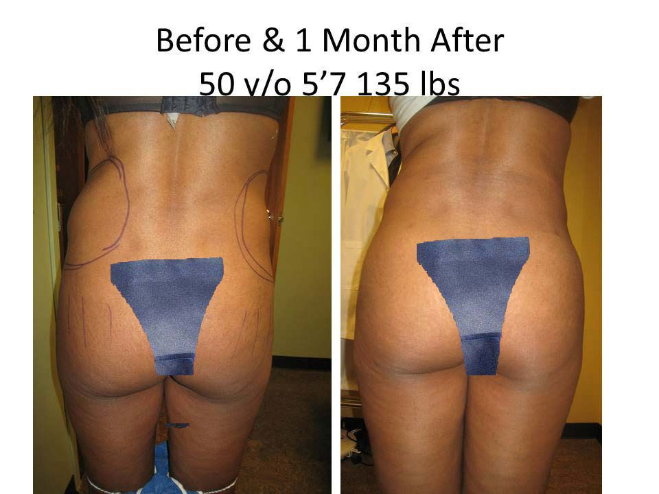 Fat Transfer to Buttock Liposuction Before and After Photo 11
