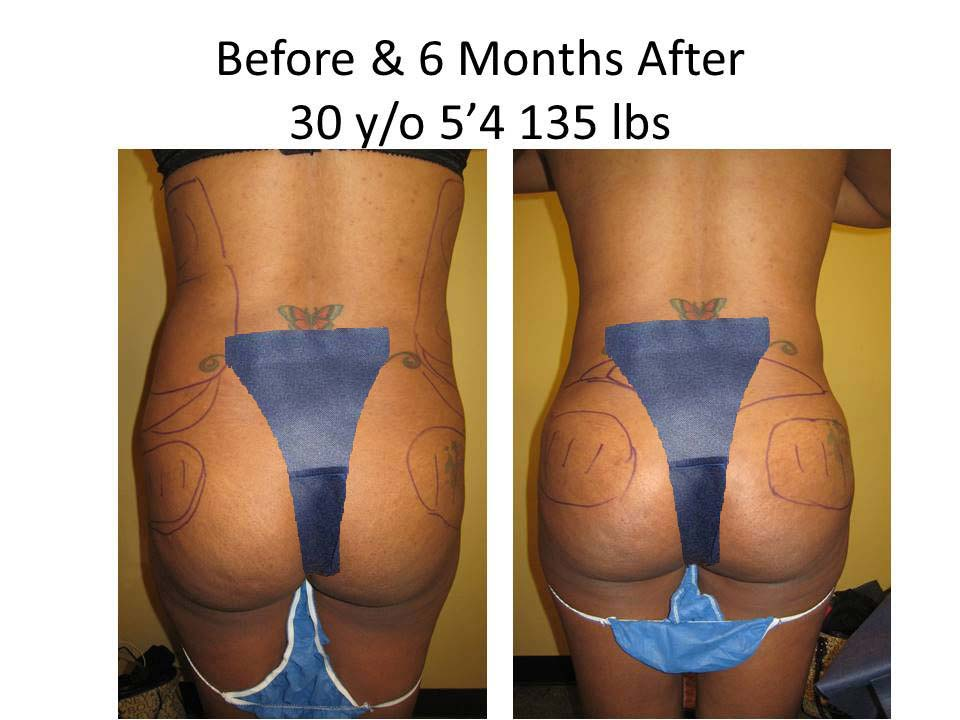 Fat Transfer to Buttock Liposuction Before and After Photo 12