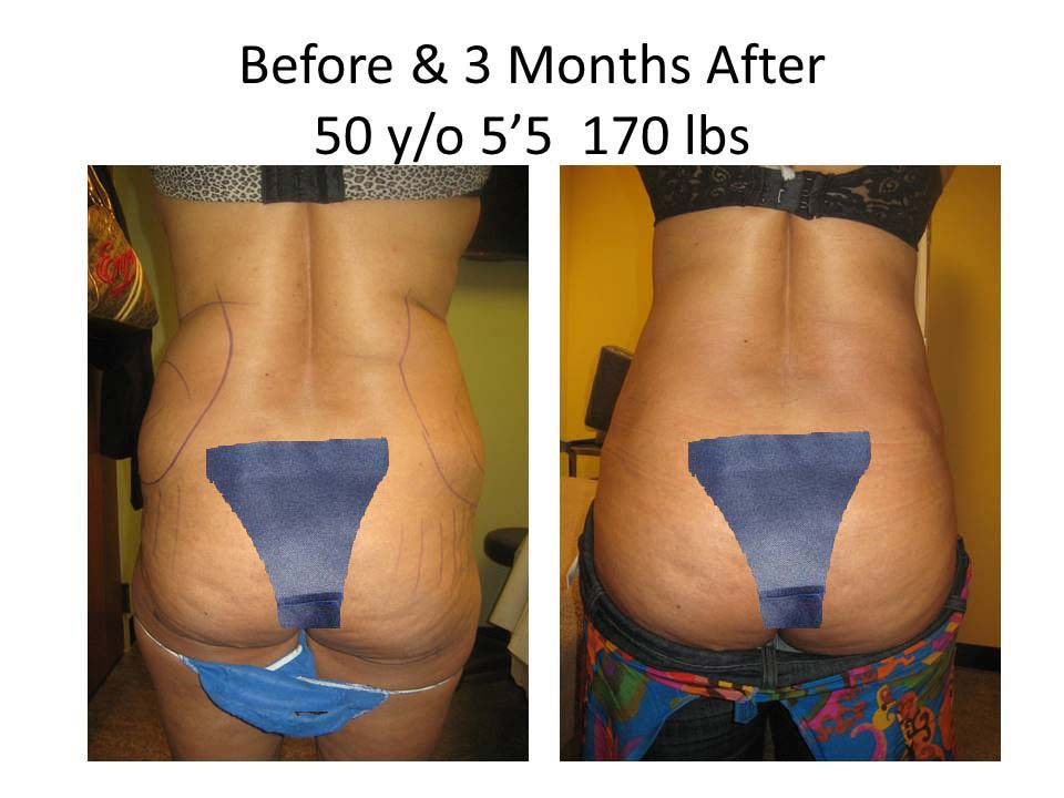 Fat Transfer to Buttock Liposuction Before and After Photo 13