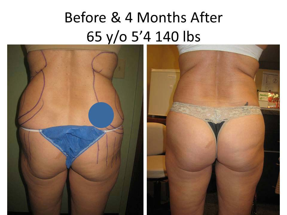 Fat Transfer to Buttock Liposuction Before and After Photo 14