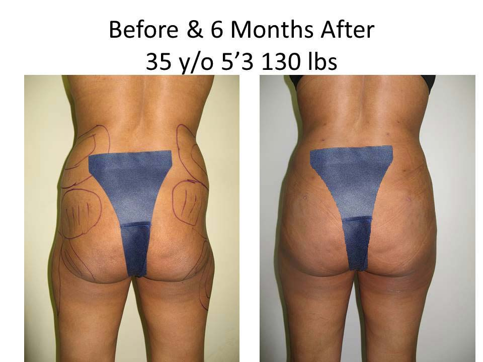 Fat Transfer to Buttock Liposuction Before and After Photo 16