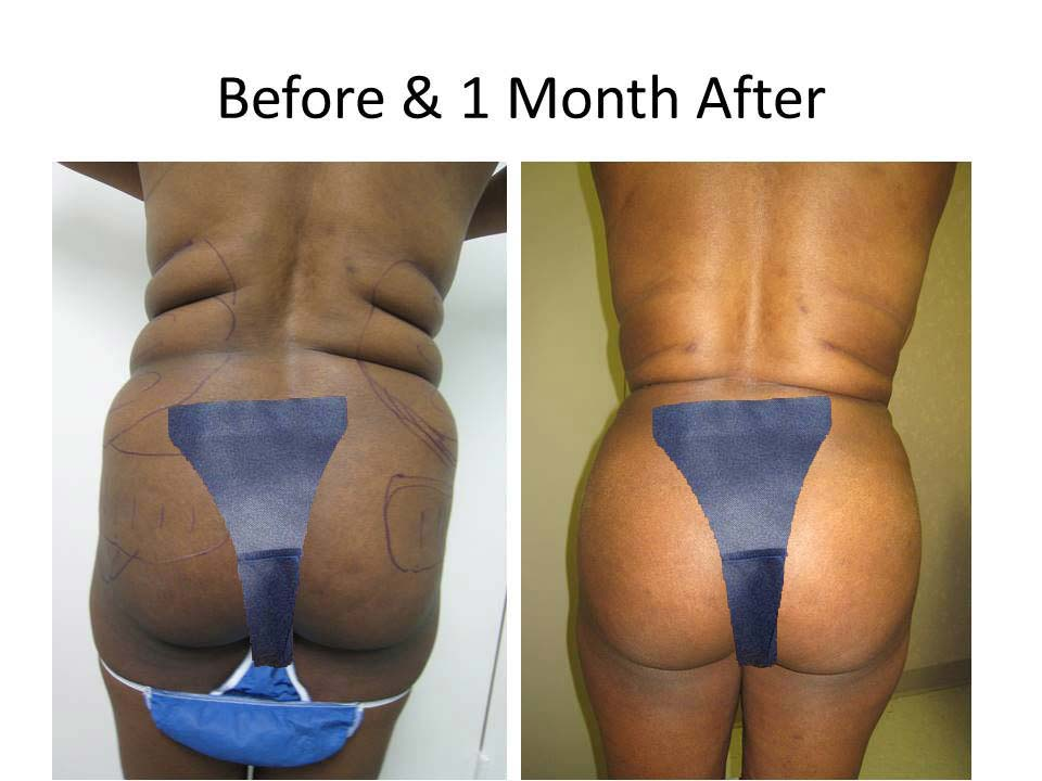 Fat Transfer to Buttock Liposuction Before and After Photo 17