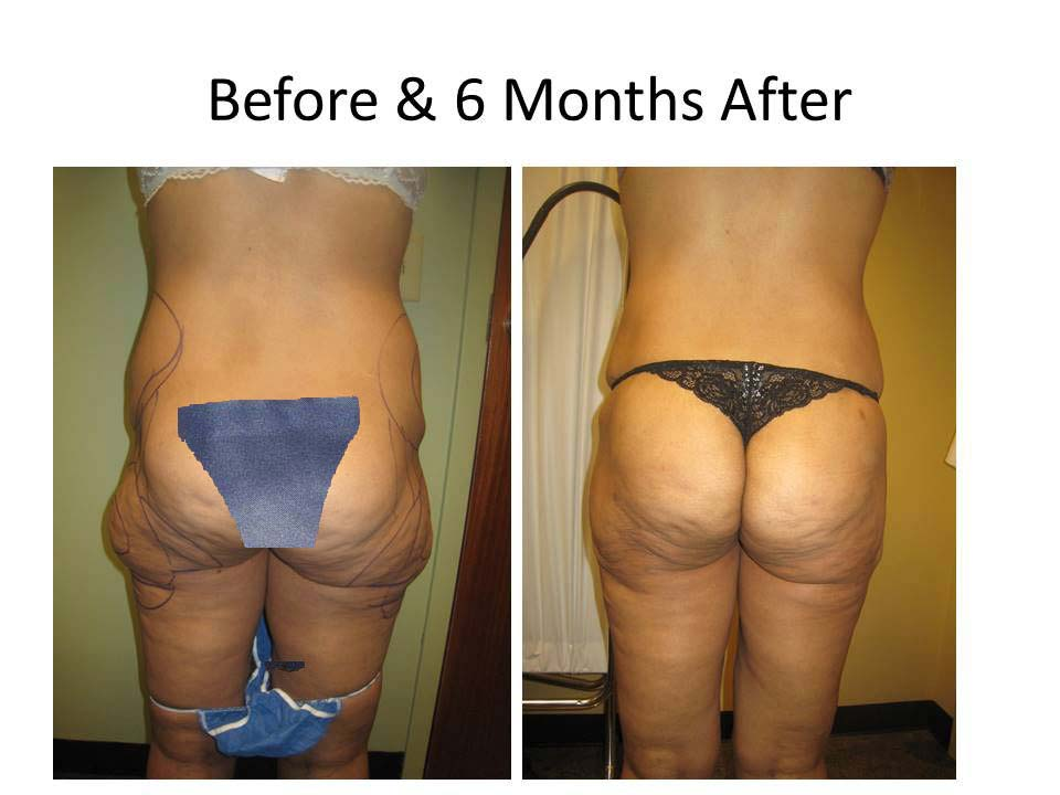Fat Transfer to Buttock Liposuction Before and After Photo 18