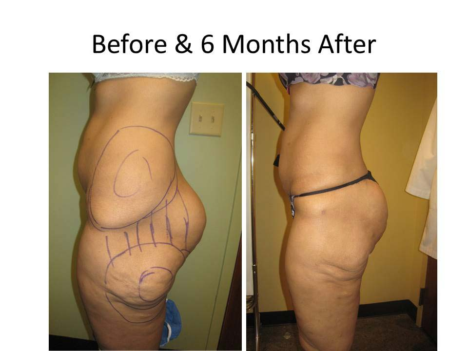 Fat Transfer to Buttock Liposuction Before and After Photo 19
