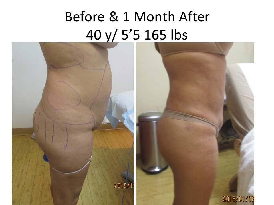 Fat Transfer to Buttock Liposuction Before and After Photo 2