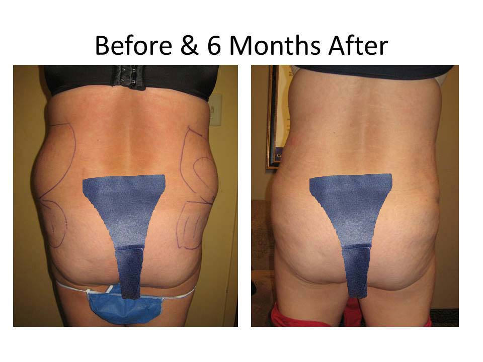 Fat Transfer to Buttock Liposuction Before and After Photo 20