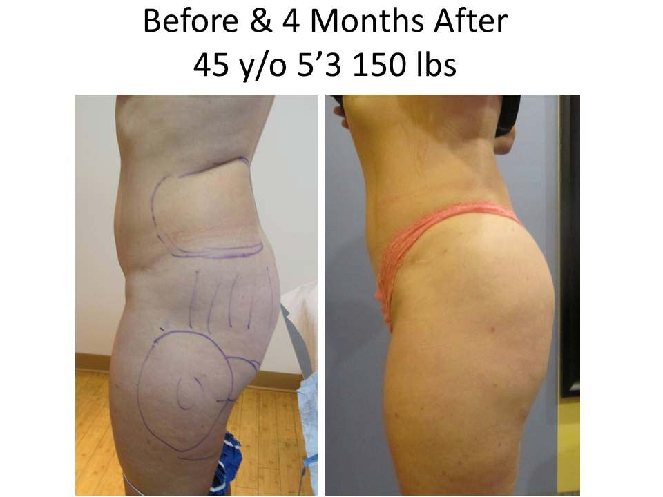 Fat Transfer to Buttock Liposuction Before and After Photo 4