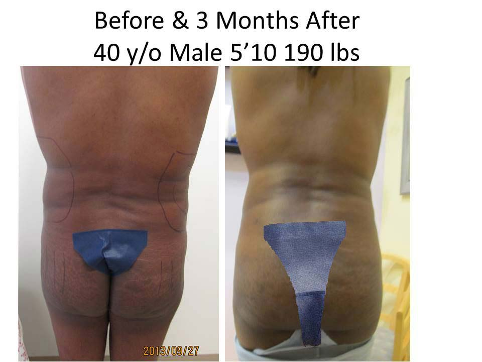 Fat Transfer to Buttock Liposuction Before and After Photo 5