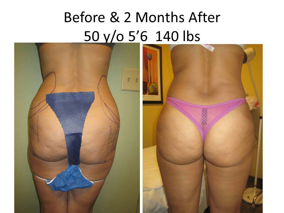 Fat Transfer to Buttock Liposuction Before and After Photo 7