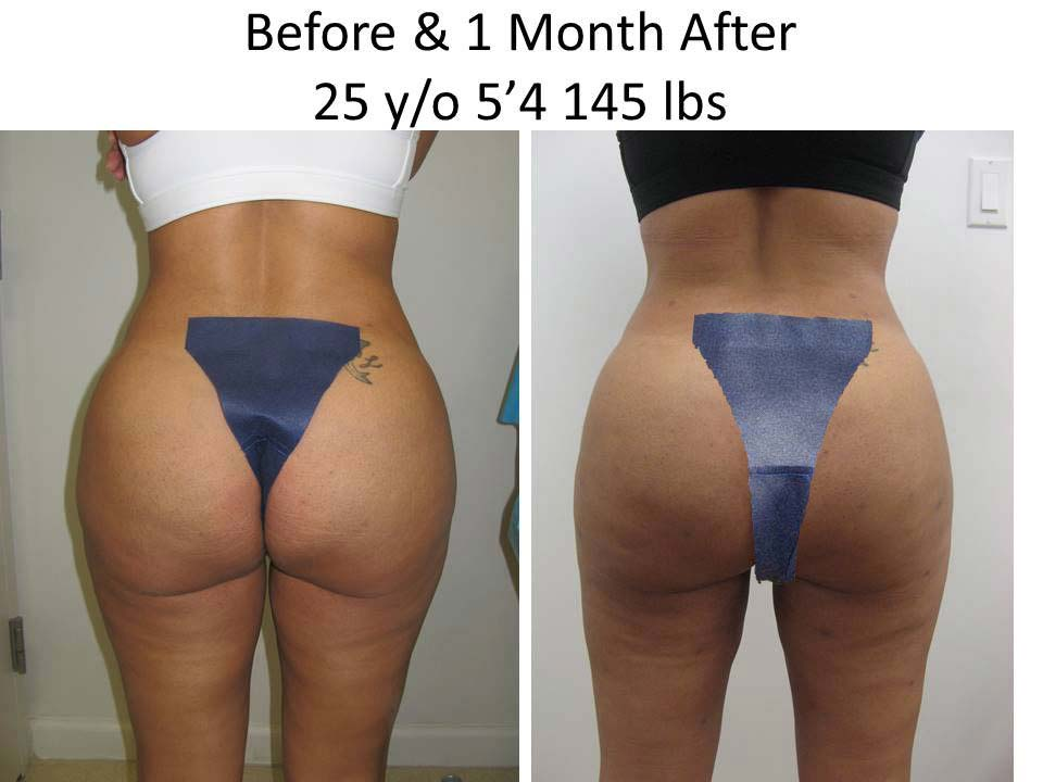 Fat Transfer to Buttock Liposuction Before and After Photo 9