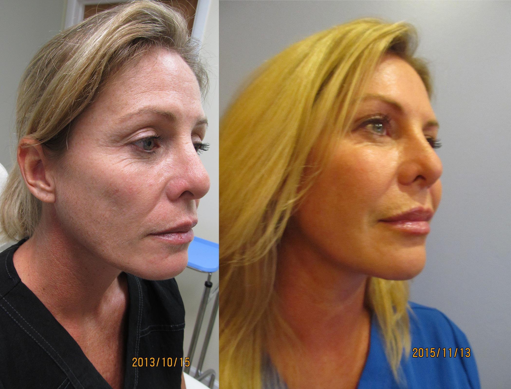 Fat Transfer to Face Before and After Photo 1