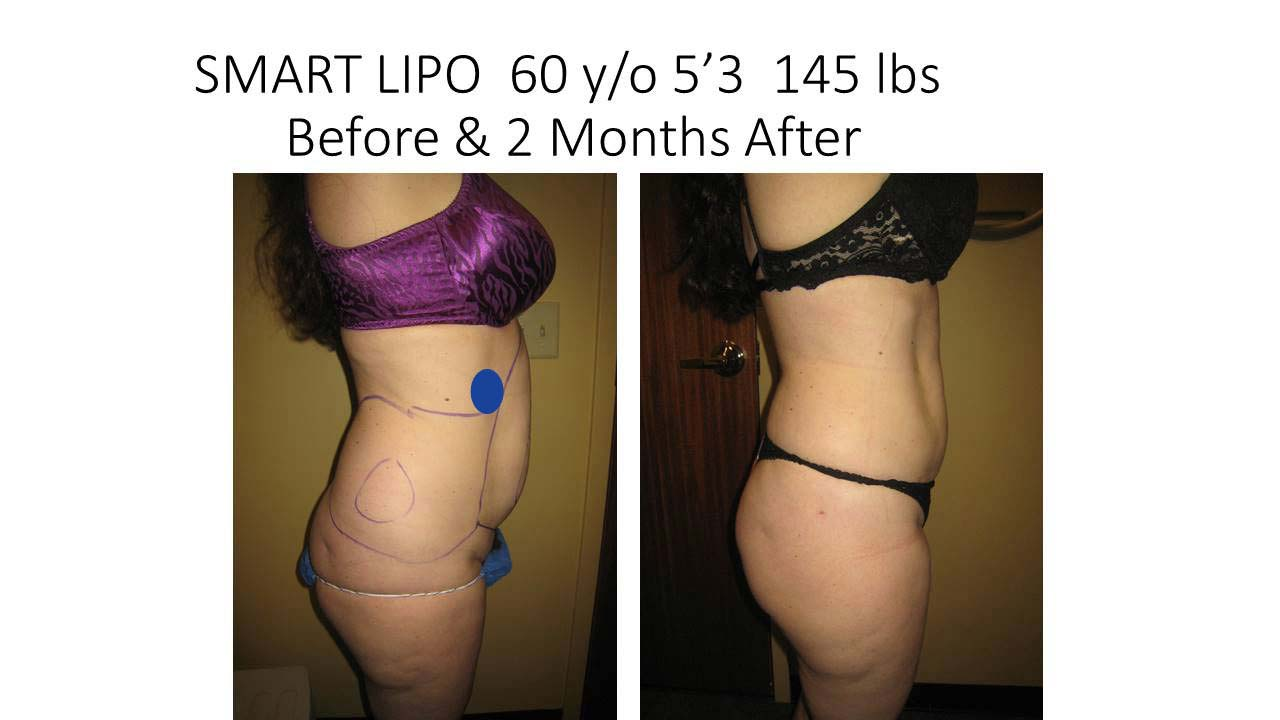 Liposuction Abdomen Fat Removal Before and After Photo 10
