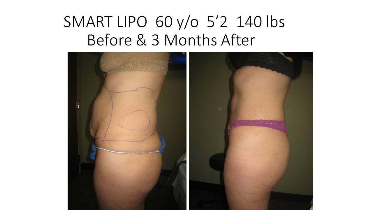 Liposuction Abdomen Fat Removal Before and After Photo 15