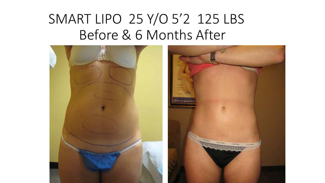 Liposuction Abdomen Fat Removal Before and After Photo 3