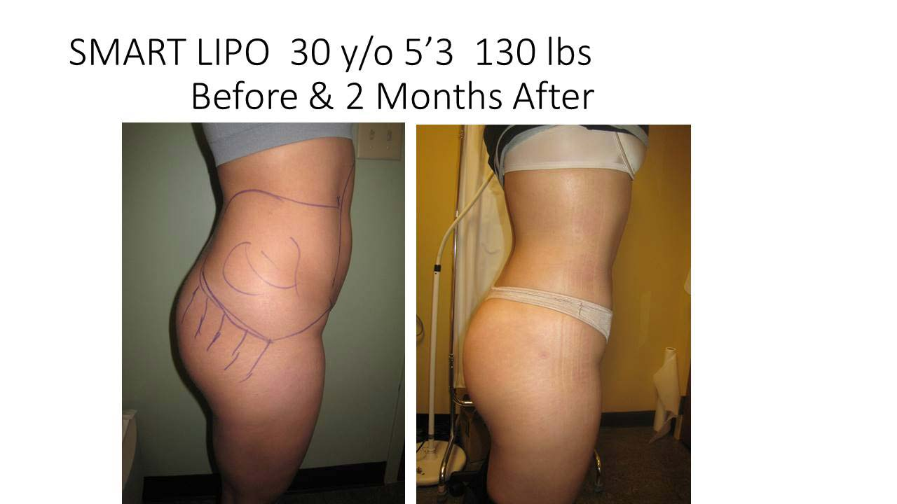 Liposuction Abdomen Fat Removal Before and After Photo 7