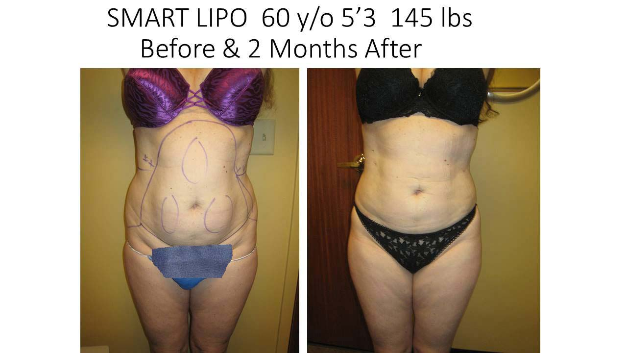 Liposuction Abdomen Fat Removal Before and After Photo 9