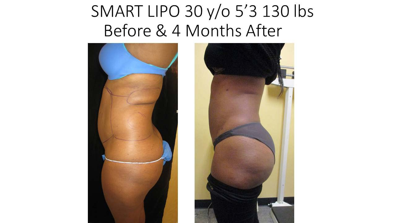 Liposuction Fat Removal Before and After Photo 12