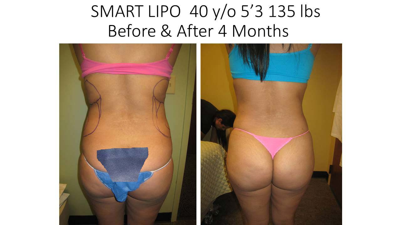 Liposuction Fat Removal Before and After Photo 15