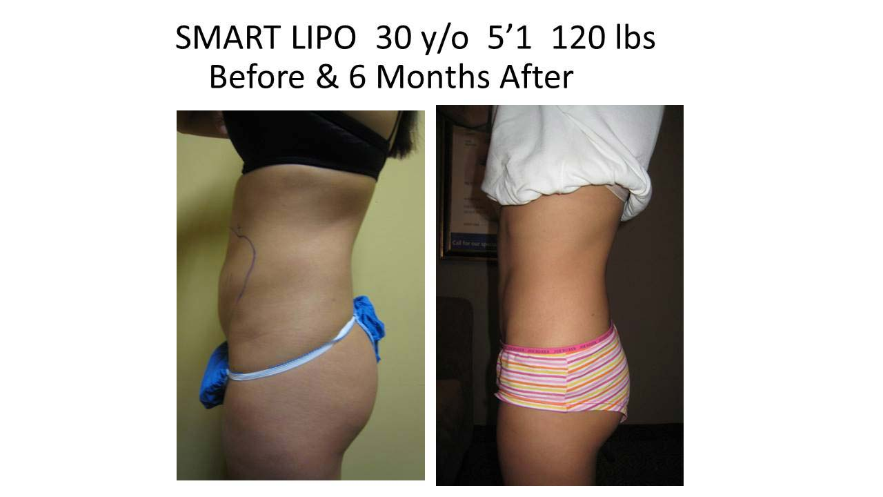 Liposuction Fat Removal Before and After Photo 17