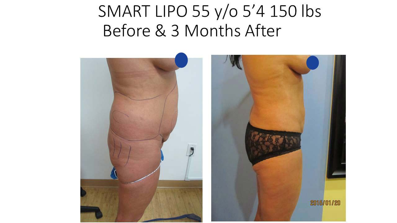 Liposuction Fat Removal Before and After Photo 4