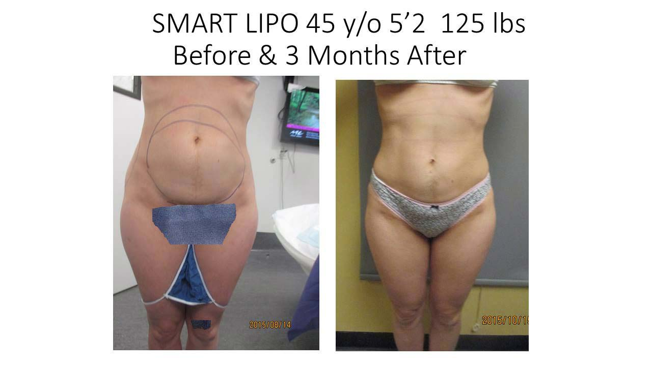 Liposuction Fat Removal Before and After Photo 5