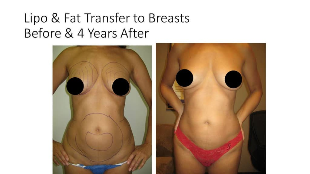 Liposuction Fat Transfer to Breasts Before and After 1