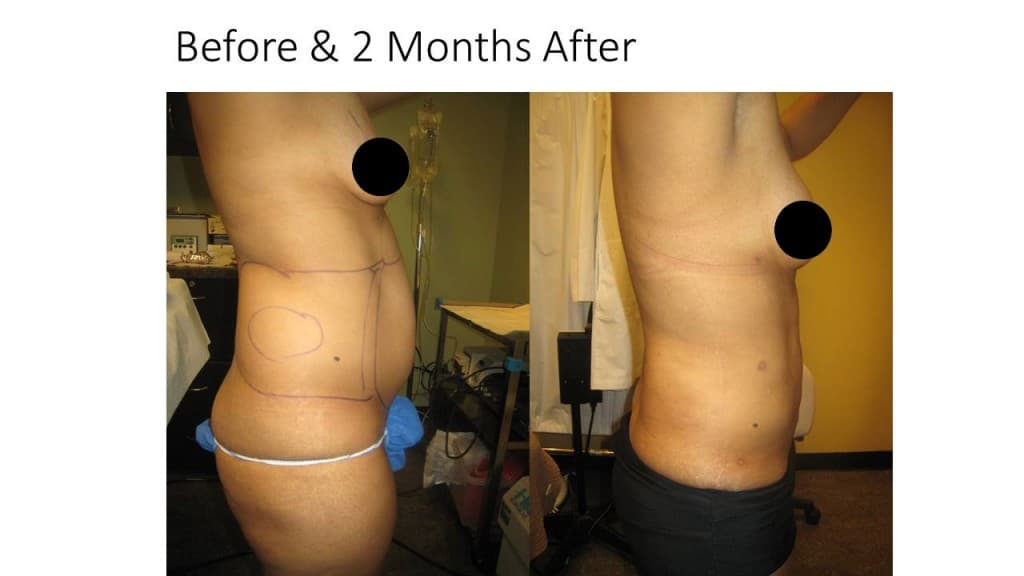 Liposuction Fat Transfer to Breasts Before and After 3
